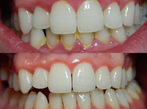 Tartre comment s en d barrasser sans l aide d un dentiste - Comment enlever le tartre ...