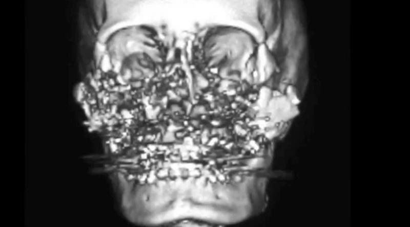 Imagerie du crâne de Connie Culp après le coup de feu qu'elle a reçu au visage