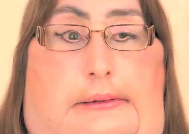 Connie Culp après sa greffe du visage