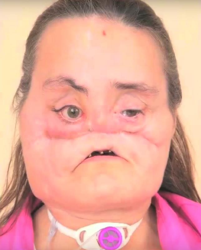 Connie Culp après le coup de feu qu'elle a reçu et avant sa greffe du visage