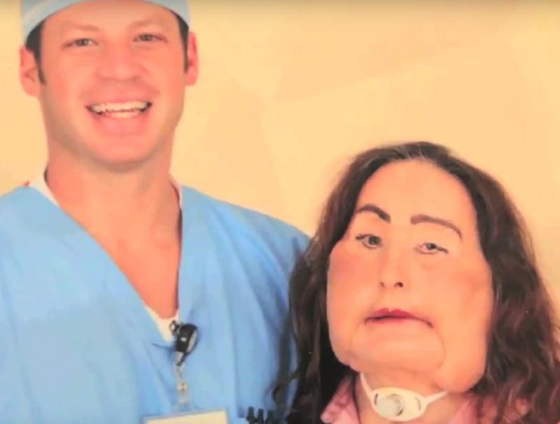 Connie Culp et le chirurgien qui l'a opérée pour réaliser la première greffe du visage, quasi totale, aux États-Unis
