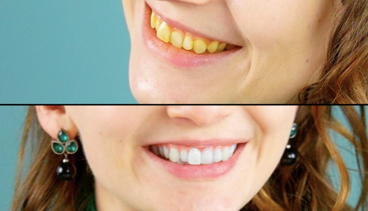 blanchissement des dents avec des fraises