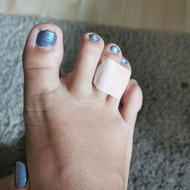 2 toes glued together
